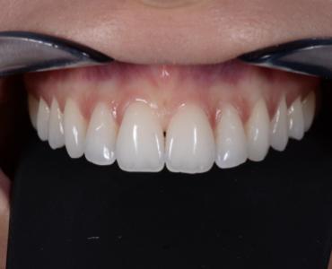 Fotografia odontoiatrica