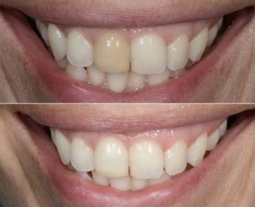 Sbiancamento Endodontico, prima e dopo